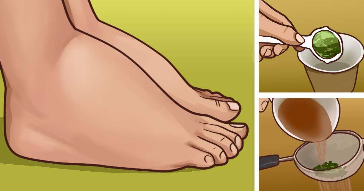 Как снять отёк ног у беременных 94